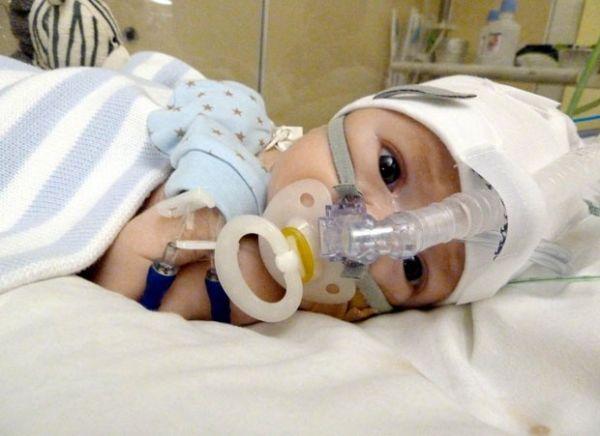 Pais salvam bebê com tratamento descoberto na internet 3